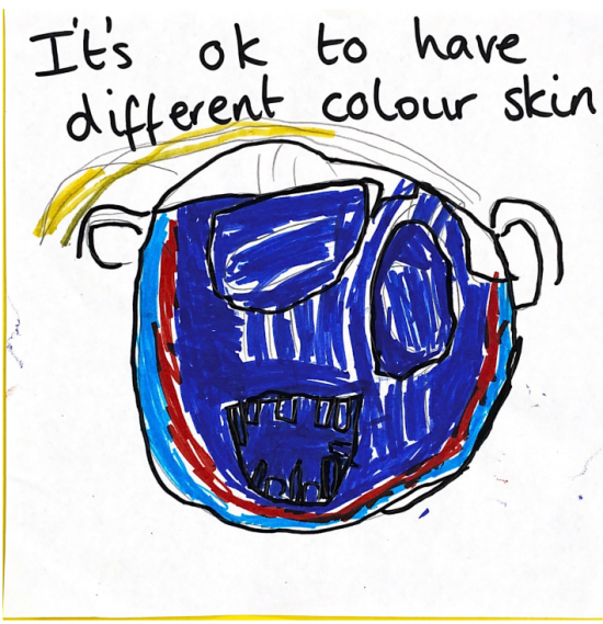 It's ok to have different colour skin